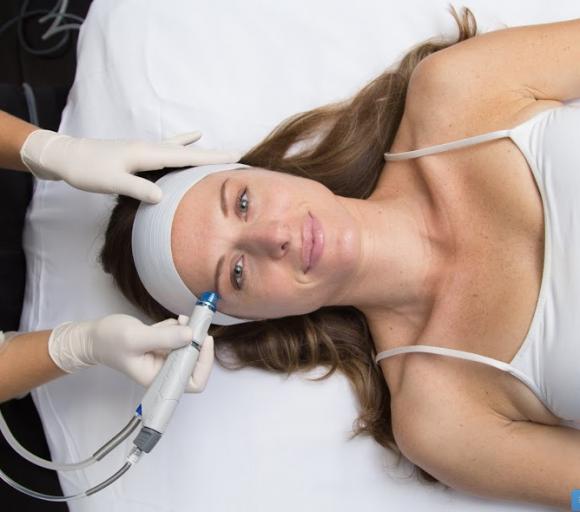mesoterapia inyectada o virtual